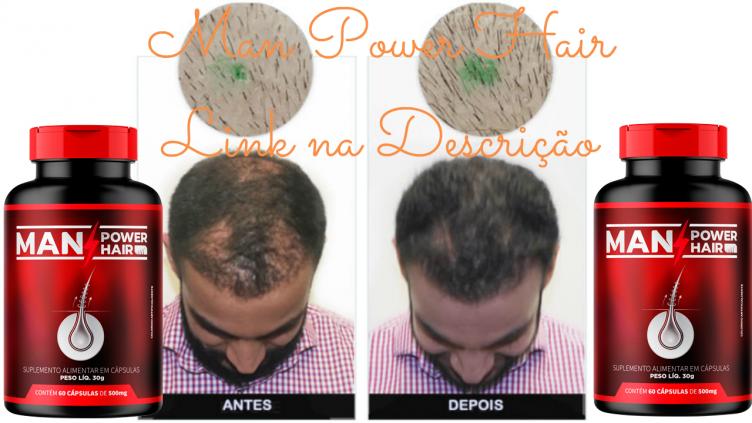 Remédio Para Queda de Cabelo Man Power Hair